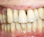 A száj előkészítése a fogpótlás viselésére