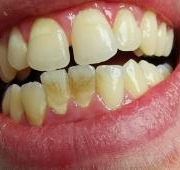 Fél a fogkőeltávolítástól?